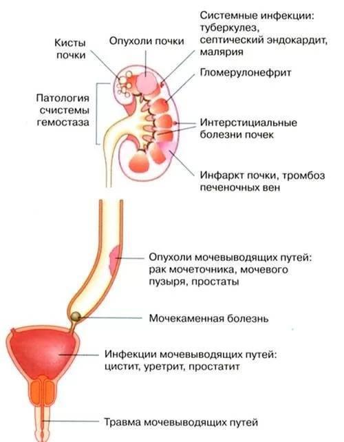 Сгустки крови в моче: причины, диагностика, лечение, в том числе при беременности и у детей, фото