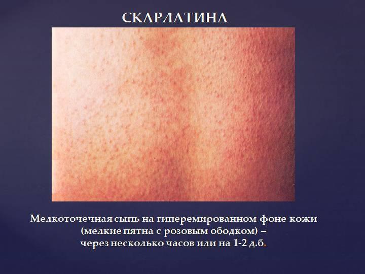 Розеола у детей симптомы и лечение фото