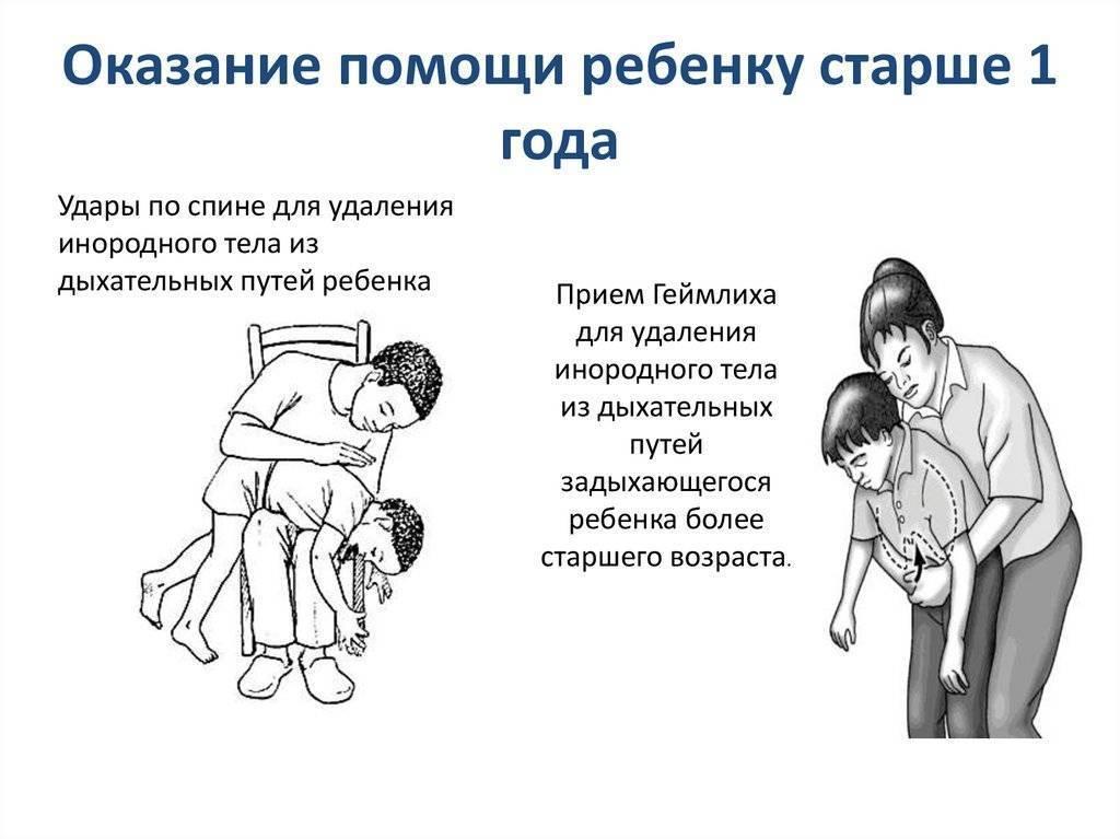 Что делать, если ребенок подавился (эти действия могут спасти ему жизнь)