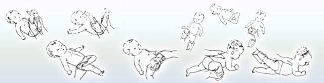 Массаж, упражнения и гимнастика при дисплазии тазобедренных суставов