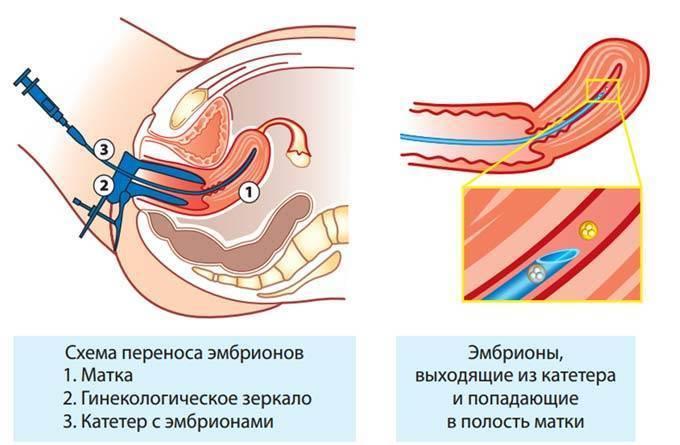 Как себя вести после переноса эмбрионов и что можно делать после эко