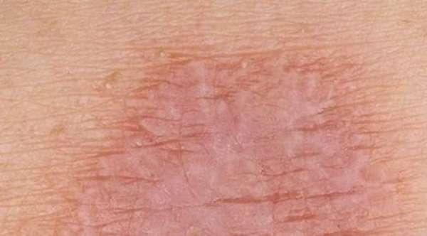 Шершавая кожа у ребенка: причины, внешние и внутренние, что делать