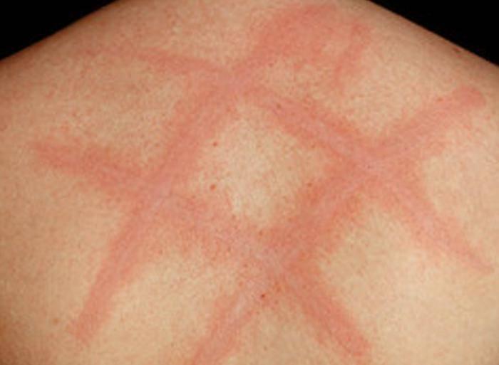 Сыпь от солнца: солнечная крапивница на руках, фото, лечение
