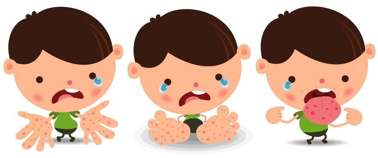 Энтеровирусный стоматит – неприятная болезнь
