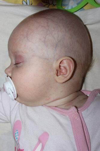 Маленький родничок у новорождённого: причины, последствия