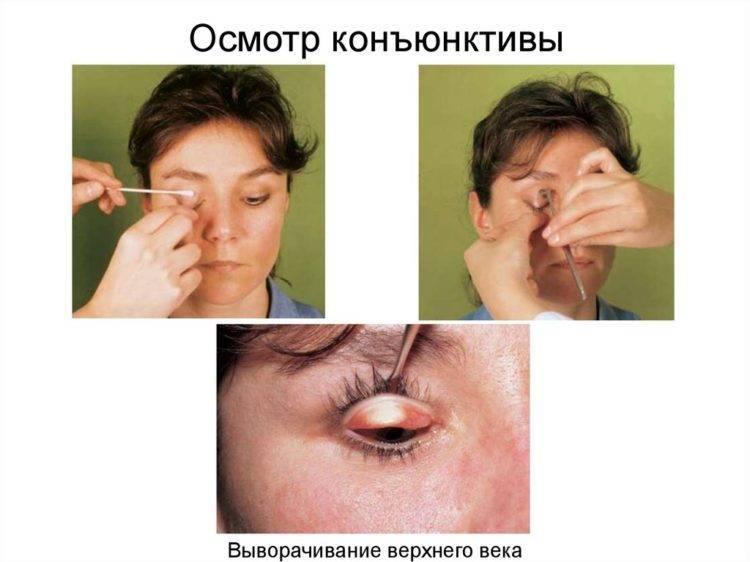 Ребенку попал песок в глаза — что делать, как правильно промыть их? - wikidochelp.ru