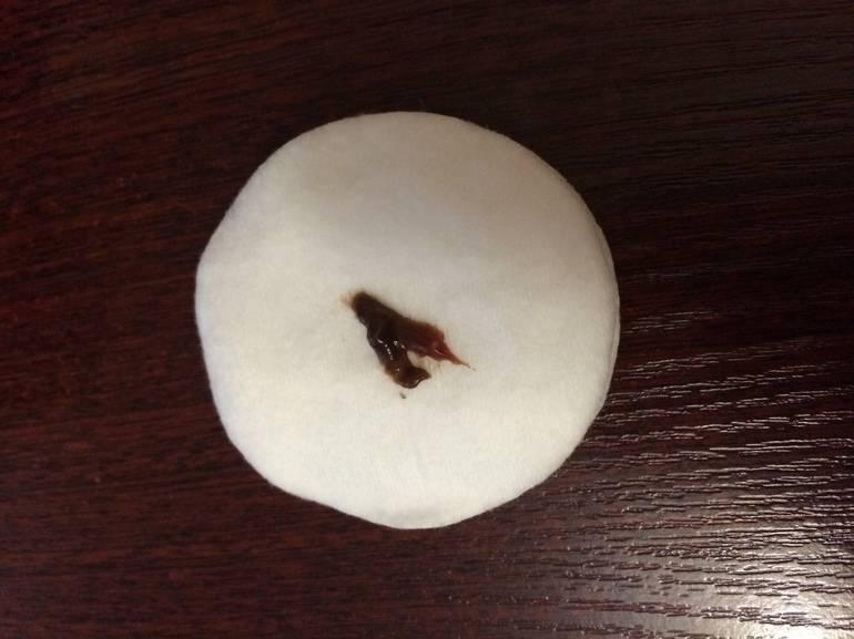 Как избавиться от обильных месячных со сгустками