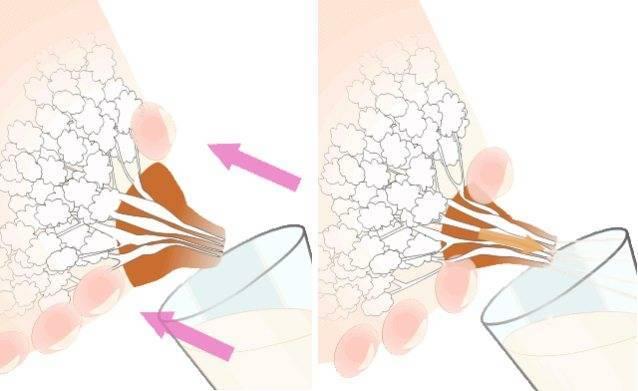 Лактостаз: как распознать, методы лечения, можно ли кормить ребенка грудью