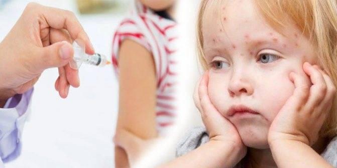 Иммунопрофилактика кори, краснухи и паротита: какие используются вакцины и как переносится прививка?