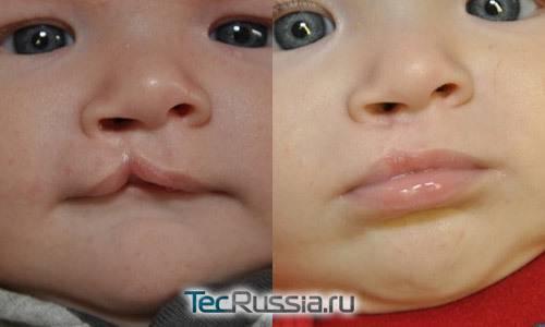 Заячья губа и волчья пасть: причины, диагностика и лечение, фото до и после операции - я здоров