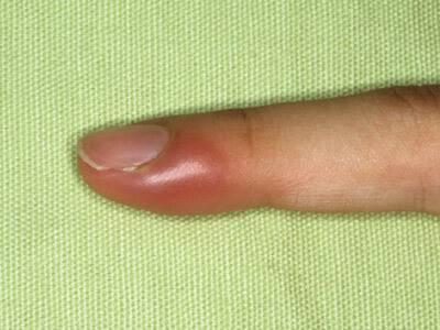 Если гноится палец на ноге возле ногтя лечение у ребенка - все о детях