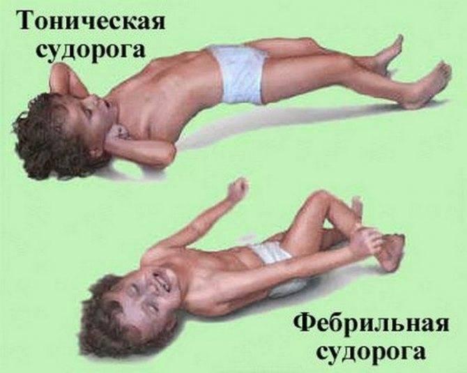 Фебрильные судороги у детей: причины, симптомы и лечение