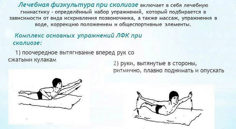 Упражнения при сколиозе 1 степени включают в себя: зарядку гимнастику и лфк. также комплекс упражнений для детей.