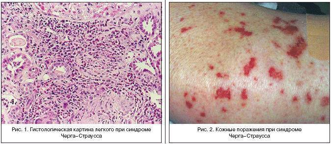 Геморрагический васкулит у детей
