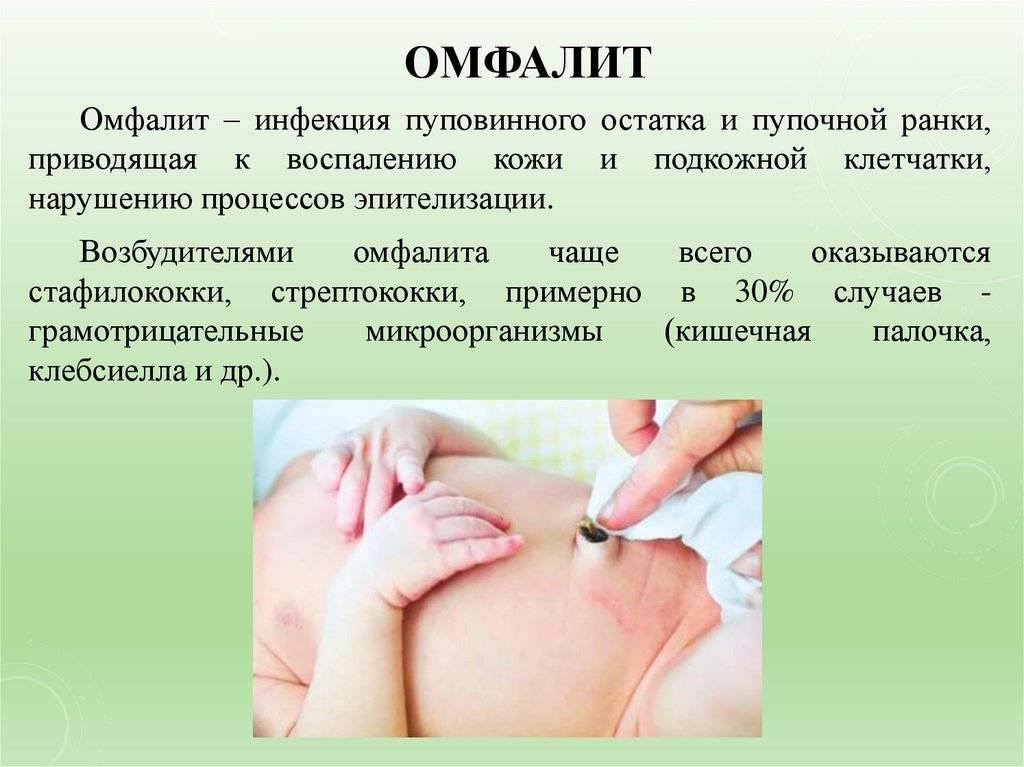 Омфалит у новорожденных детей: причины возникновения, клинические проявления, методы терапии