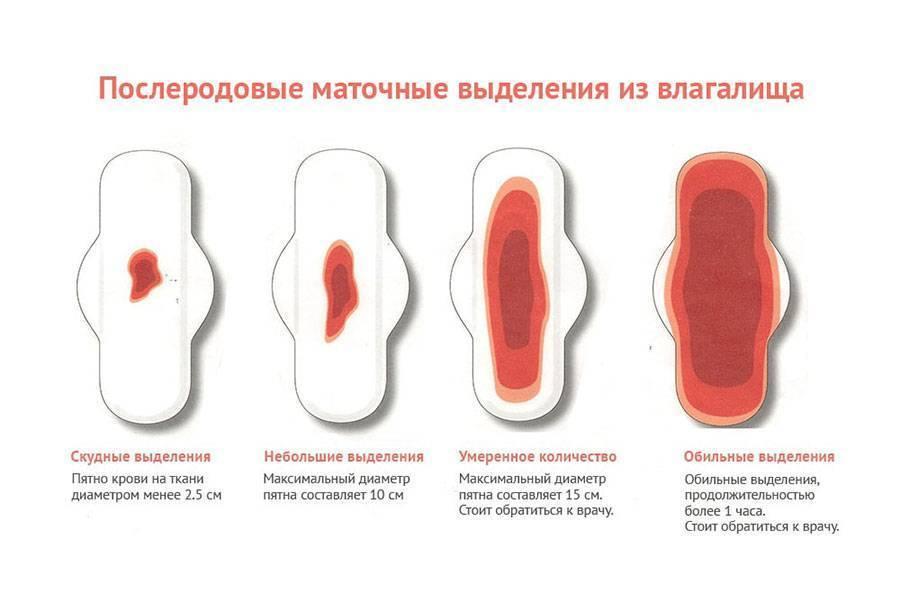 Сколько дней идёт кровь после выскабливания - выделения после гистероскопии и чистки матки, последствия, месячные