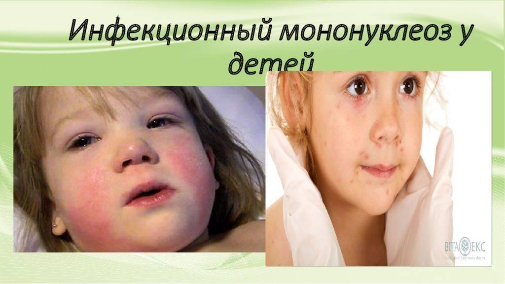 Мононуклеоз у детей: симптомы и лечение, фото, профилактика и последствия
