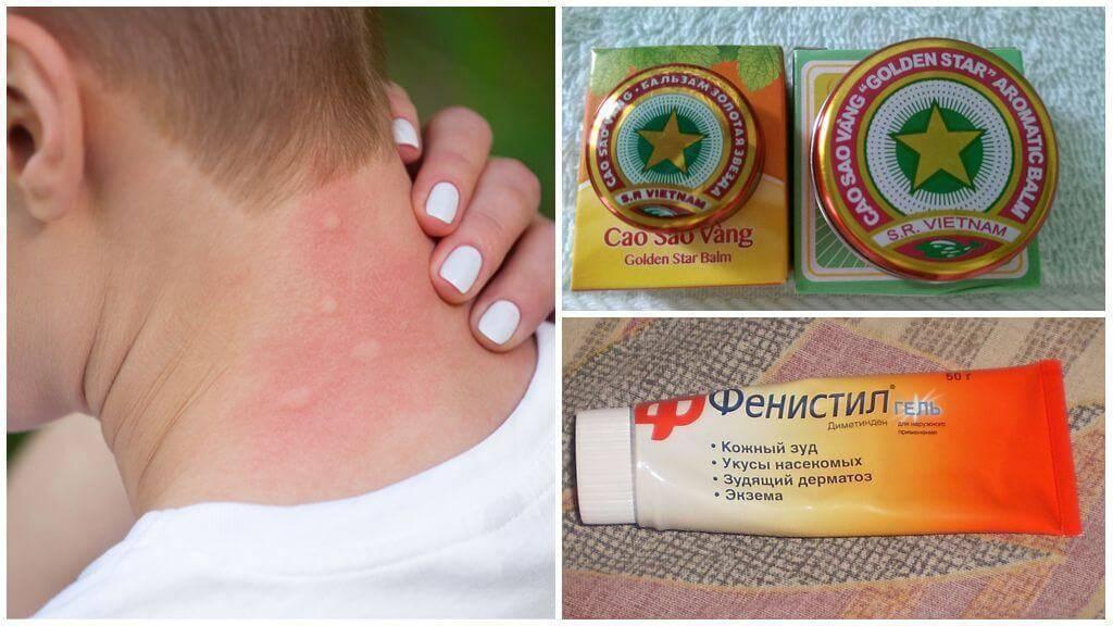 Укус комара: как снять отек у ребенка аптечными и подручными средствами