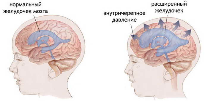 Киста головного мозга у новорожденного: симптомы и лечение кист сосудистых сплетений и псевдокист, последствия и причины у грудничков