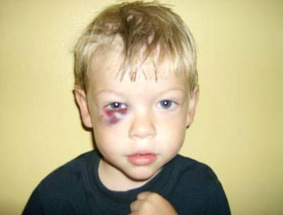 Если ребенок ударился носом и пошла кровь. опасен ли ушиб носа - врач-информ