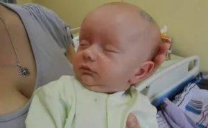 Отек мозговых оболочек у новорожденного. как проявляется и чем грозит отек головного мозга у новорожденного - советник по медицине