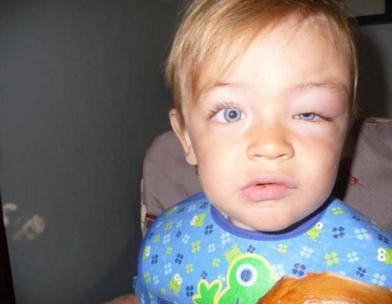 Комар укусил в веко - как снять отек
