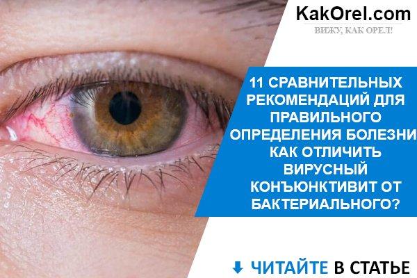 Конъюнктивит бактериальный - быстрое лечение глаз у взрослых