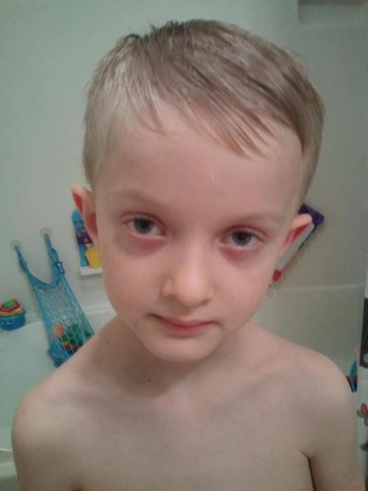 Как можно убрать синяки под глазами у ребенка?
