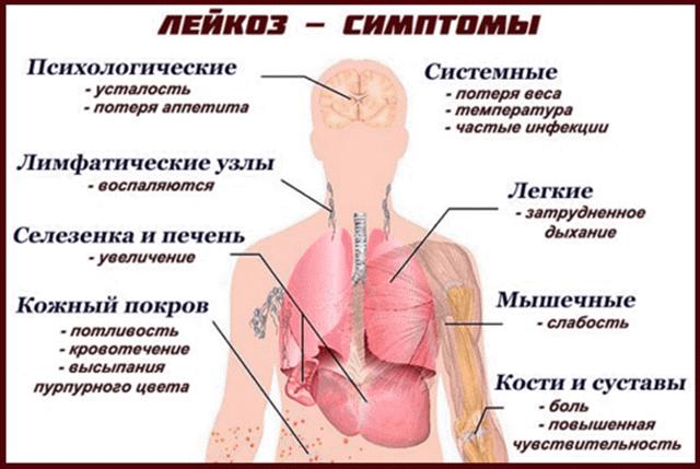 Сколько живут с острым лейкозом крови