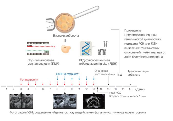 ПГД эмбриона: для чего проводится при ЭКО, как проходит генетический анализ?