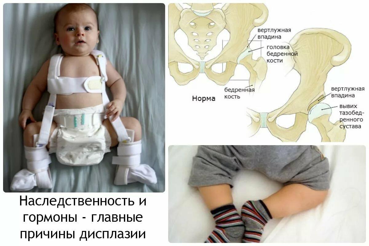 Дисплазия тазобедренных суставов у новорожденных и детей до года: признаки, лечение и последствия - все о суставах