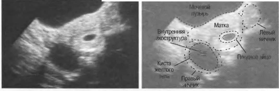 Можно ли перепутать кисту с беременностью: 2 способа как отличить