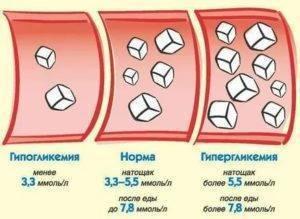Низкий сахар в крови у новорожденного ребенка: причины, чем это чревато