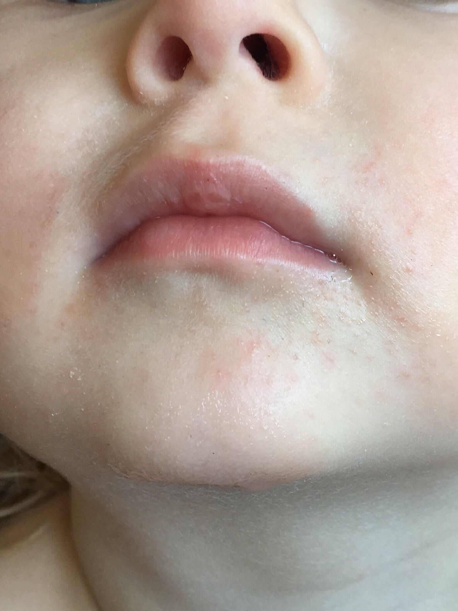 Чем лечить простуду на губе у новорожденного