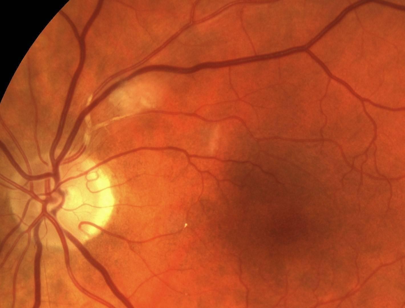 Лечение ангиопатии сетчатки глаза у ребенка