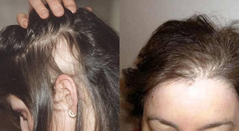 Советы для предотвращения выпадения волос при беременности на ранних сроках