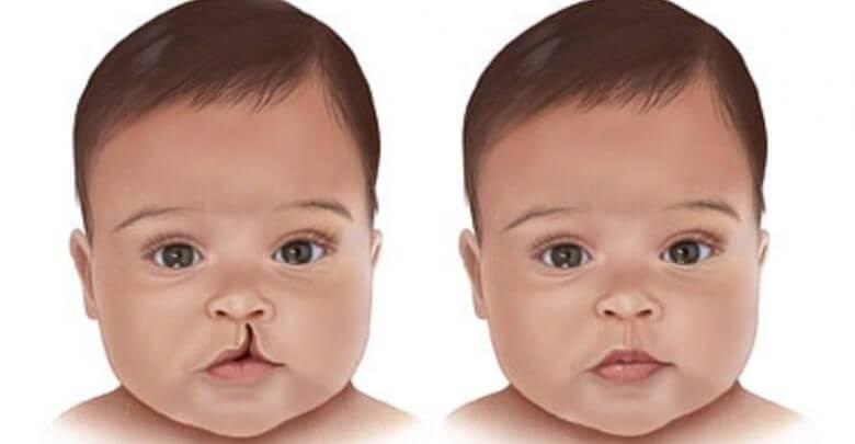 Заячья губа: причины возникновения, операция