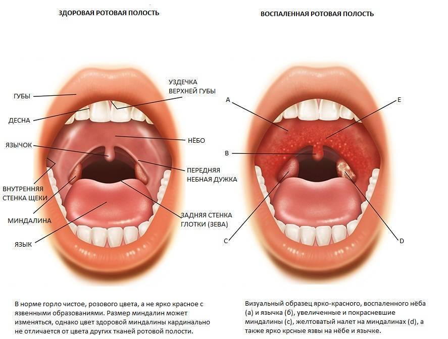 Красное горло у ребенка: как определить болезнь и чем ее лечить