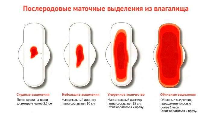 Сгусток крови при беременности на ранних сроках: почему выходят сгустки крови, причины на ранних и поздних сроках, на 5 неделе