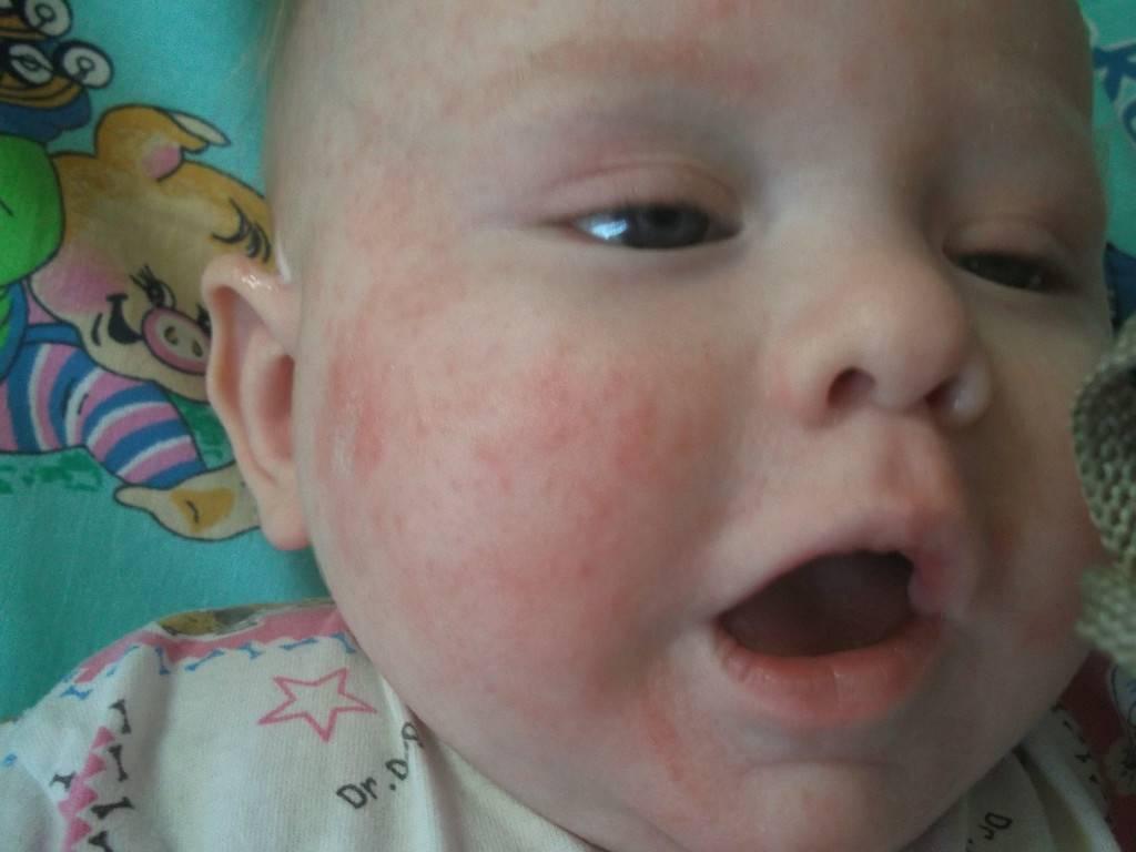 Температура потом сыпь у ребенка фото