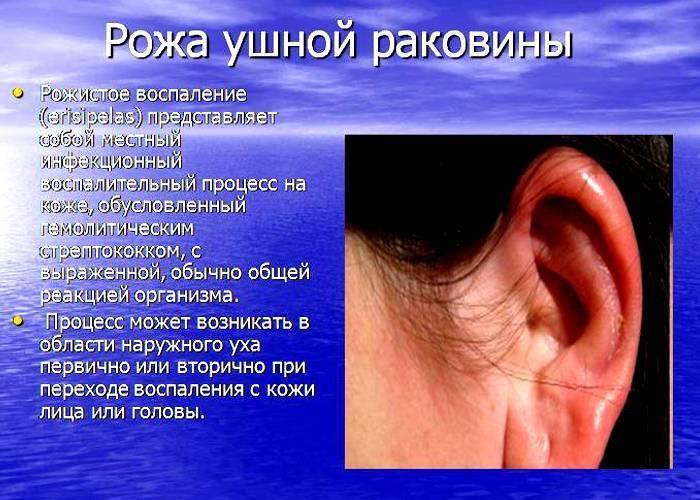 У ребенка покраснели опухли и чешутся уши. что делать, если у ребенка опухло и покраснело ухо, причины такой реакции - стопаллергия