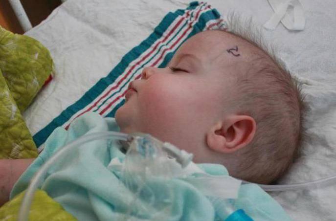 Проявления внутричерепного давления (синдрома вчд) у ребенка, диагностика и лечение