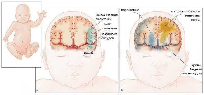 Соотношение зрелости и незрелости новорожденного ребенка. последствия и лечение нейрофизиологической незрелости коры головного мозга у новорожденного ребенка причины эмоциональной незрелости