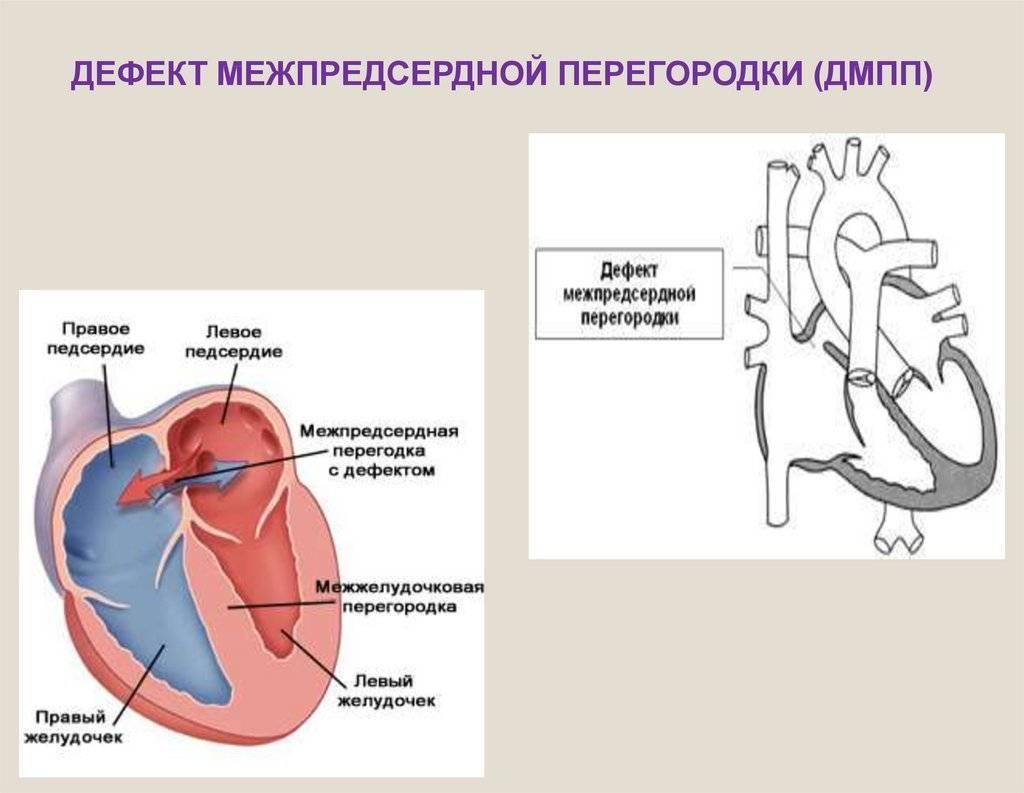 Дефект межпредсердной перегородки: лечение, операция :: syl.ru