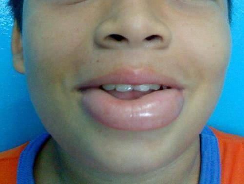 Опухла нижняя губа у ребенка что это может быть - wikimedhelp.ru