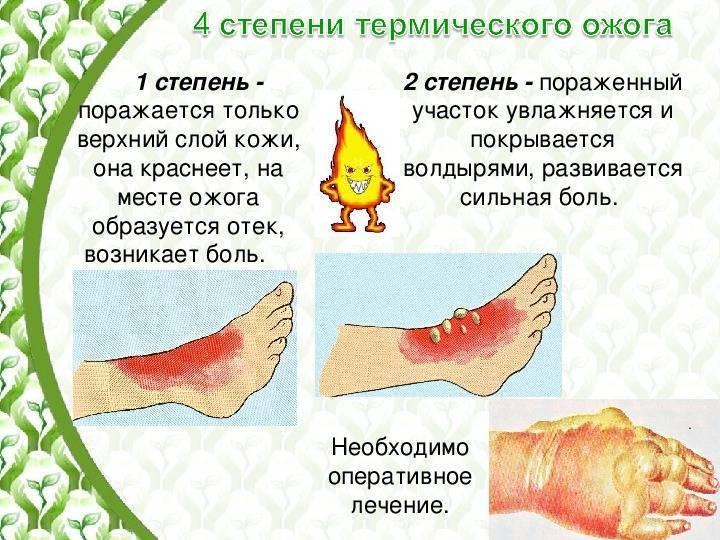 Ожоги у детей - лечение, степени, осложнения, клиническая картина