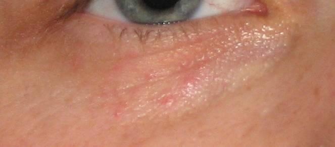 Красные прыщики под глазами болят