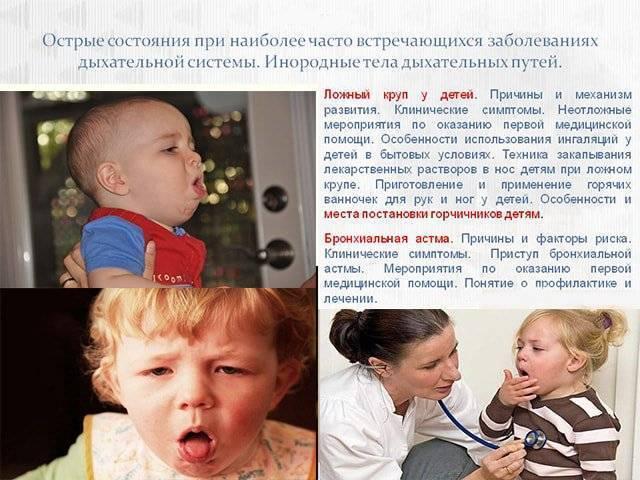 Ложный круп: симптомы и лечение у детей, правила первой неотложной помощи. что делать при диагнозе ложный круп у детей