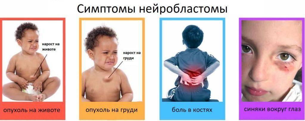 Нейробластома у детей: стадии, симптомы, выживаемость и причины возникновения