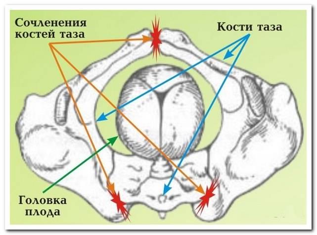 Расхождение тазобедренных костей при беременности